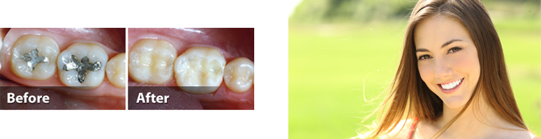 Tooth-Colored Fillings in Pinecrest