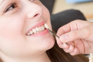 Dental Veneers Services