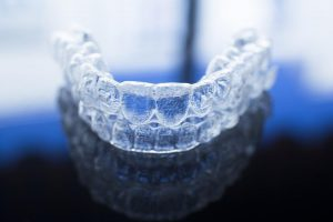 Invisalign in Pinecrest