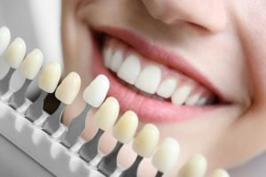Teeth Whitening Treatment in Miami