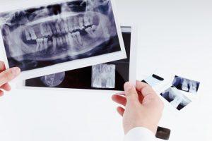 Dental Bridge Repair